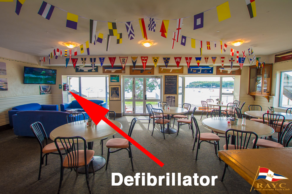 The defib is located next to the TV in the Mermaid Lounge and is serviced annually